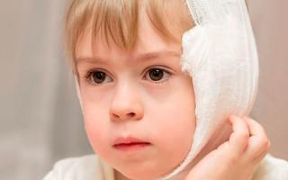 Водочный компресс на ухо – как правильно его сделать