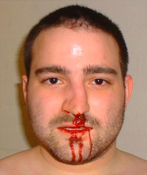 Что делать, если сломан нос – лечение перелома в домашних условиях