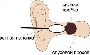 Что делать, если серная пробка в ухе – как вытащить и убрать скопление