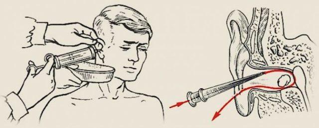 Перекись водорода в ухо - можно ли капать для чистки ушей взрослому