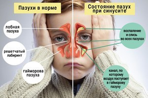 Причины возникновения отека носа и способы лечения
