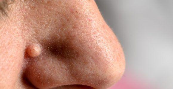 Наросты в носу у человека на перегородке – причины и лечение ребенка и взрослого