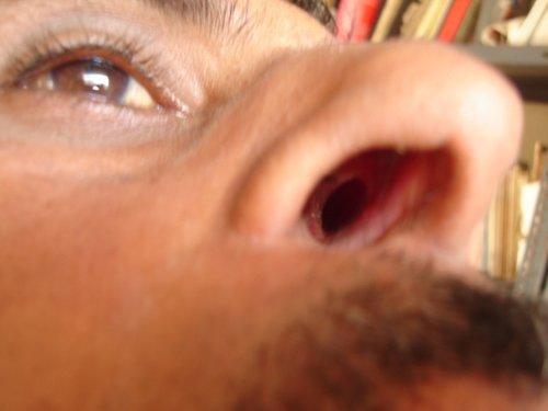 Причины трещин, ранок и язв в носу – почему они появляются