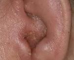 Аллергический отит у взрослых и детей