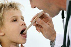 Как лечить тонзиллит у детей – схема, лекарства и антибиотики для ребенка