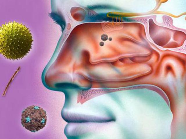 Что такое вазотомия носа - операция лазером при вазомоторном рините