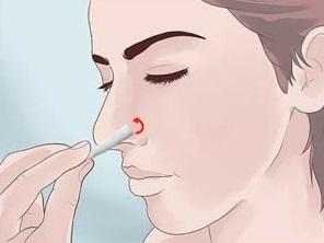 Головная боль и кровь из носа - причины и лечение головокружения