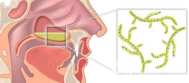 Растворы и лекарства для ингаляции при гайморите небулайзером - что использовать