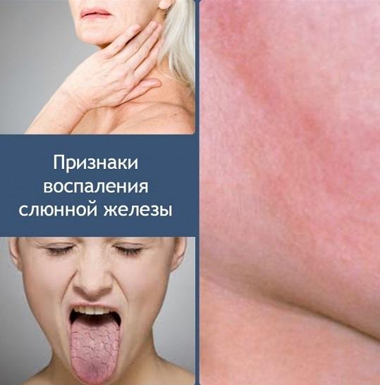 Сухость в горле – пересыхает и болит