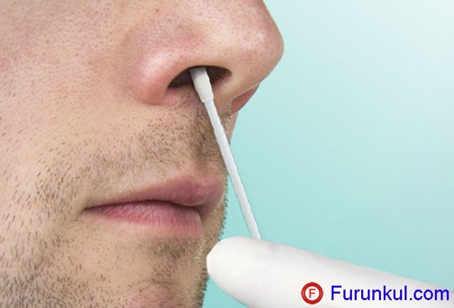 Чирей и фурункул в носу – причины и симптомы появления нарыва