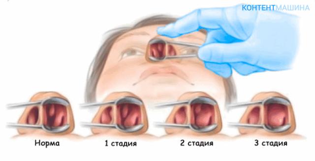 Лечение полипов в носу без операции – лучшие методы их удаления