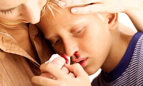 Почему ночью идет кровь из носа у взрослого – причины и лечение