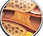 Серная пробка в ухе - что это такое и профилактика возникновения