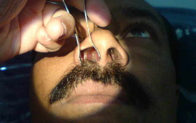 Симптомы полипов в носу у взрослых – основные признаки заболевания