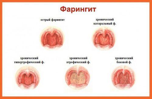 Прыщи в горле - красные и белые пупырышки на задней стенке