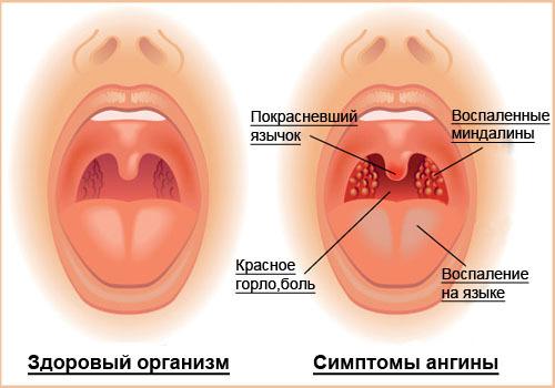 Ангина у детей от 1 до 3 лет - симптомы и признаки у ребенка