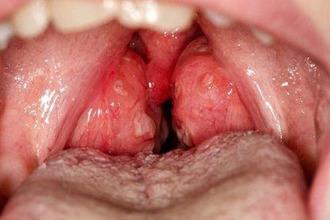 Гипертрофия небных миндалин 1, 2 и 3 степени у детей и взрослых