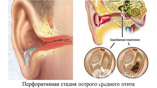Средний отит у детей – симптомы и лечение воспаления уха у ребенка