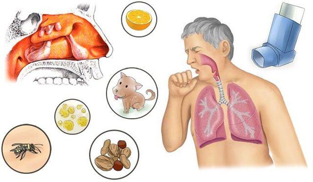 Аллергический риносинусит – симптомы и лечение у взрослых и детей