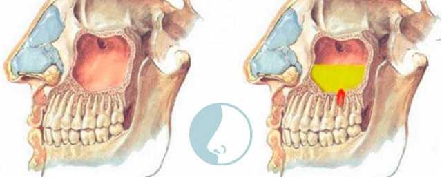 Лечение хронического гайморита у взрослых - как избавиться навсегда без операции