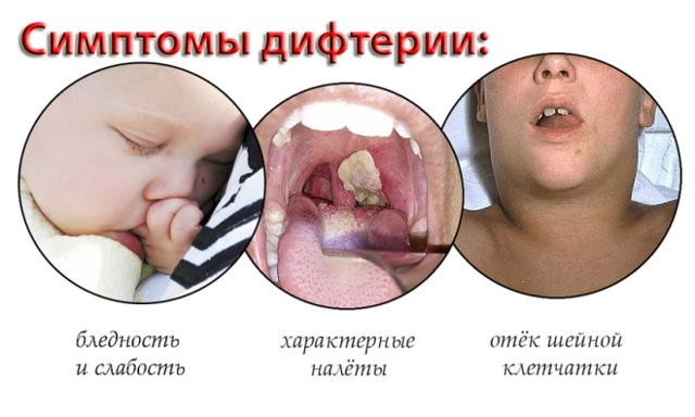 Белые точки на миндалинах у ребенка – пятна в горле у детей