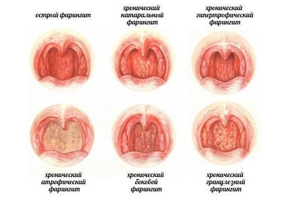 Гонококковый (гонорейный) фарингит – симптомы и лечение