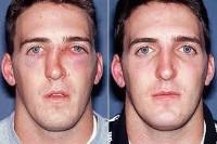 Перелом носа со смещением – лечение и операция по восстановлению костей