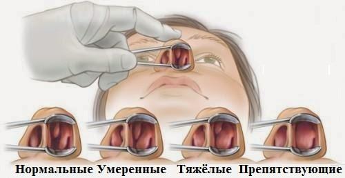 Процедуры и операции для лечения носа