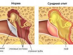 Что делать, если из уха идет кровь – как остановить и лечение