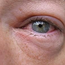 Аллергический кашель: симптомы и лечение