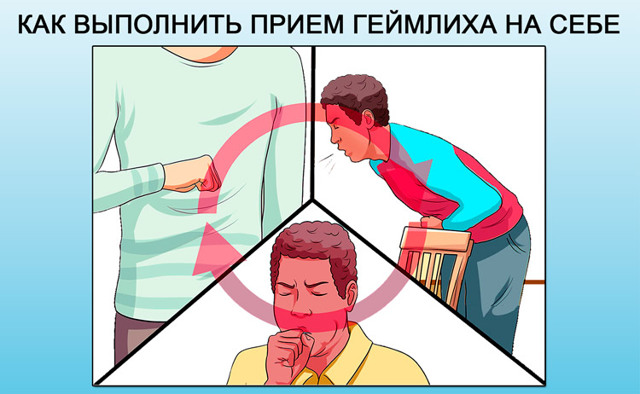 Что делать, если таблетка застряла в горле