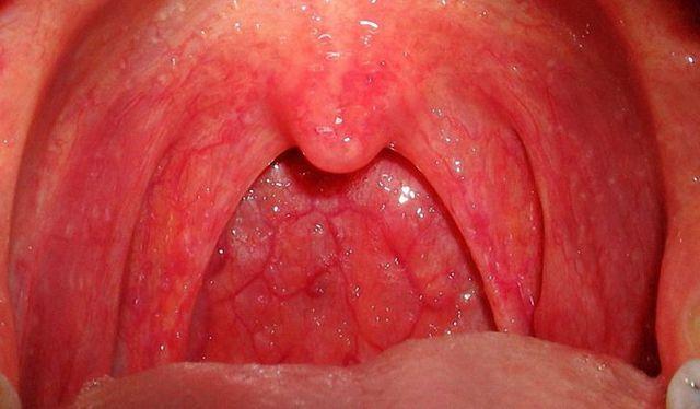 Бактериальный фарингит – симптомы и лечение у детей и взрослых
