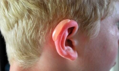 Шелушится кожа в ушах и ушных раковинах внутри и снаружи