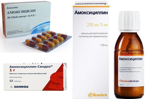 Полипозный гайморит – симптомы, лечение и осложнения