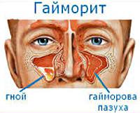 Гайморит - все о болезни и лечении