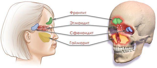Лечение сфеноидита в домашних условиях и амбулаторно
