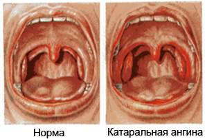 Катаральная ангина у взрослых - острый тонзиллит