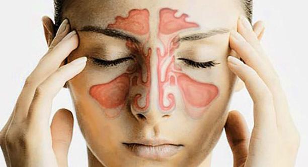 Что такое пансинусит – симптомы и лечение острого и хронического вида