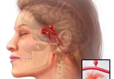 Писк в ушах в тишине – причины и лечение (почему пищит и что делать)
