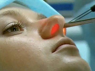 Гнойные выделения из носа – почему течет гной и как это лечить
