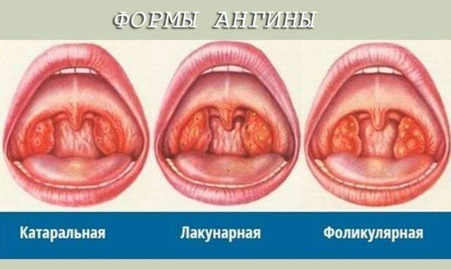 Чем лечить ангину у ребенка от 2 до 3 лет – средства и спреи для детей