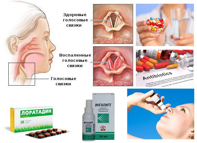 Таблетки от ларингита у взрослых