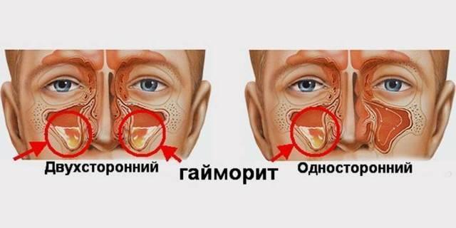 Односторонний гайморит – симптомы правостороннего и левостороннего