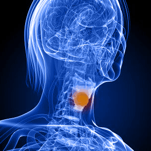 Рак горла и гортани 4 стадии – особенность и продолжительность жизни