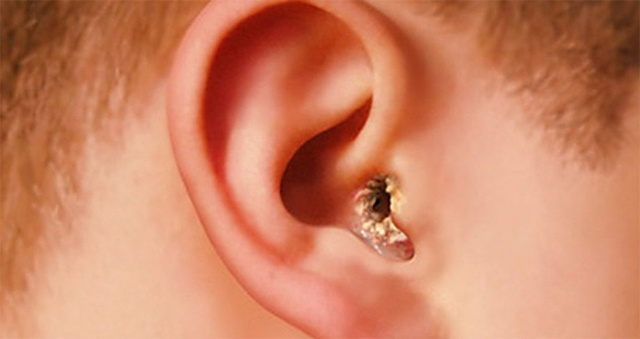 Симптомы грибка уха – признаки отомикоза и микоза у людей