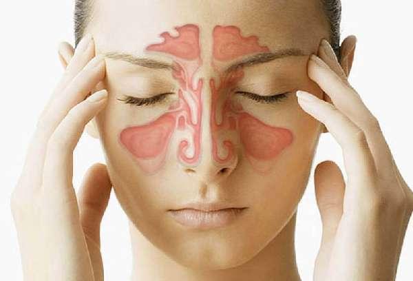 Как и чем снять отек в носу при насморке – лучшие способы