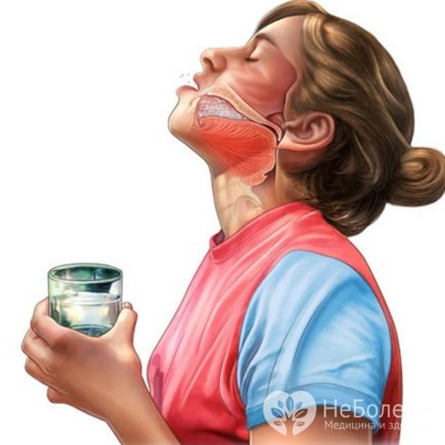 Признаки и симптомы хронического фарингита у взрослых
