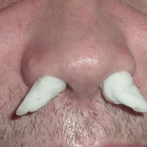 Ожог слизистой носа – симптомы, что делать и как лечить повреждение