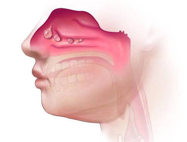Заложена одна ноздря – почему не дышит то одна, то другая по очереди