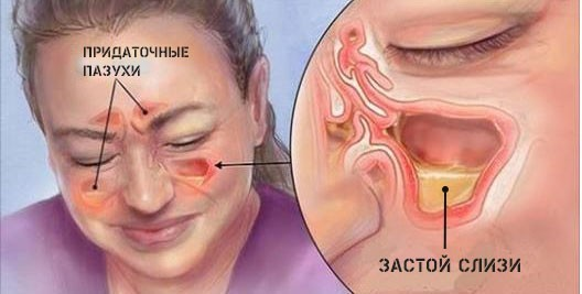 Что делать если постоянно заложен нос и не дышит - методы лечения